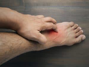 Itchy feet treatments